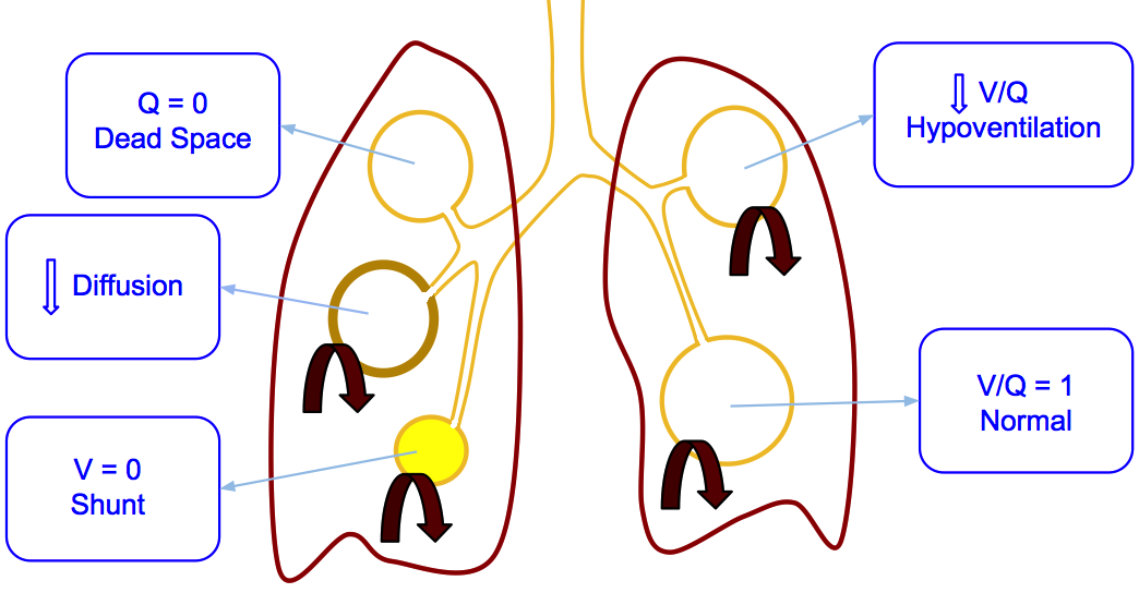 V/Q dysfunction mechanisms in the pulmonary parenchyma may cause hypoxemia and/or hypercapnia.