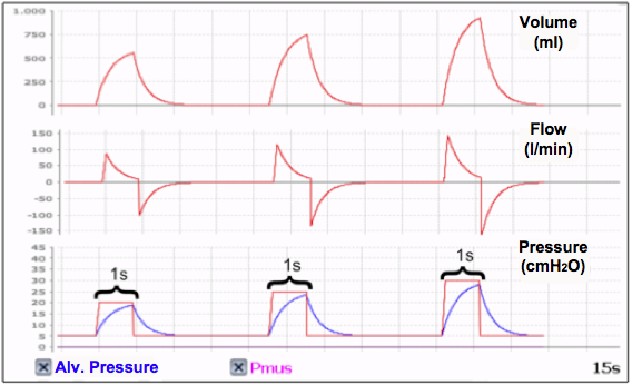 CONTROLLED and TIME CYCLES WITH CONSTANT PRESSURE (PCV) mechanical respiratory cycles. - 2