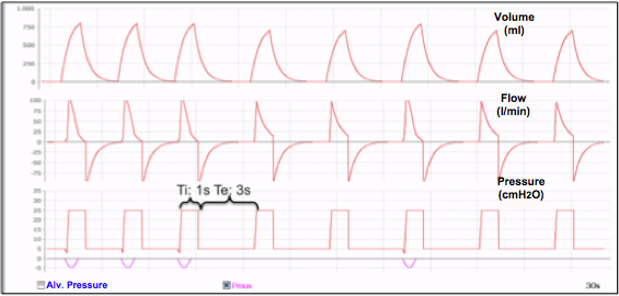 A/C-PCV Mode. Settings: RR prog: 15 rpm, Δ pressure above PEEP 20cmH2O, Ti: 1s, total RR between 16-20 breaths per minute, pressure sensitivity -2cmH2O.