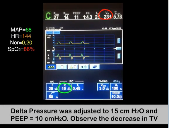 video aula Alveolar Maximum Recruitment Maneuver and Decremental Titration of PEEP in VCV mode