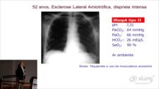 video aula indicações e objetivos da ventilação mecanica