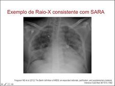 video aula A nova definição de SARA