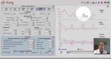 video aula Aplicando a ventilação mecânica (PSV) 4