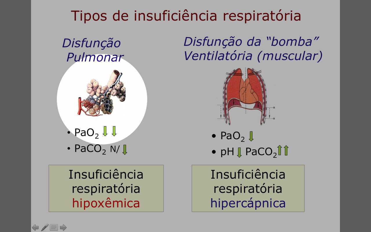 Insuficiencia_respiratoria_hipoxemica